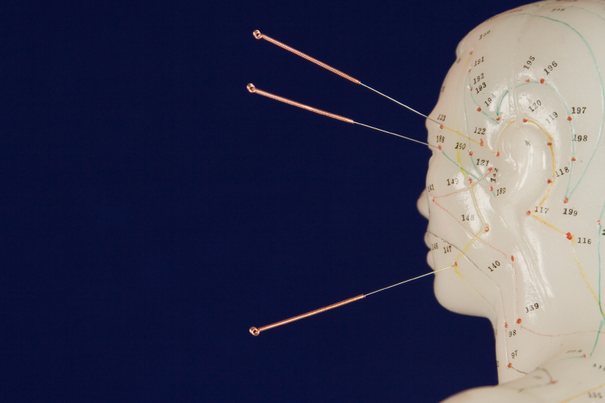 Acupuncture with IVF: Can it Help?