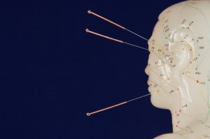 acupuncture pic 2 300x199 Acupuncture and Adenosine: Another Reason to Use Acupuncture for Pain Relief