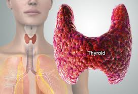 Thyroid Health & Traditional Chinese Medicine – Which Type are You?